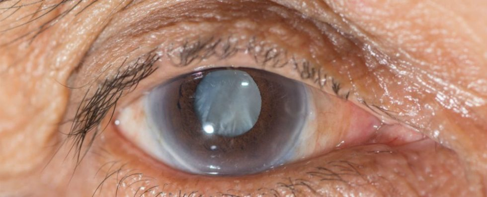 The Prevention of Cataract