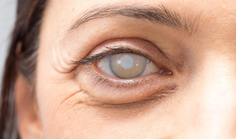 Treat Cataract through the Best Eye Institution Today
